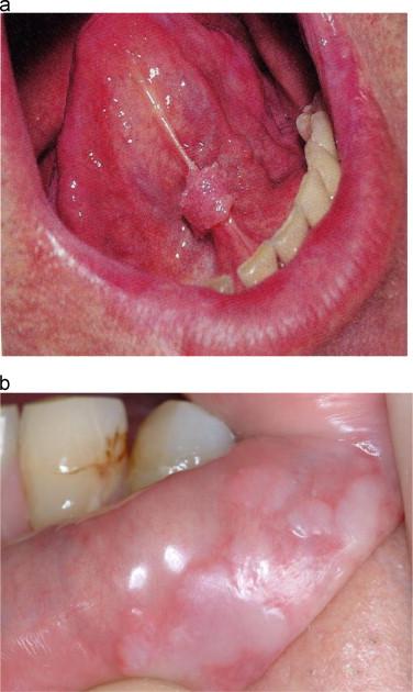 papilloma on base of tongue traitement contre papillomavirus humain