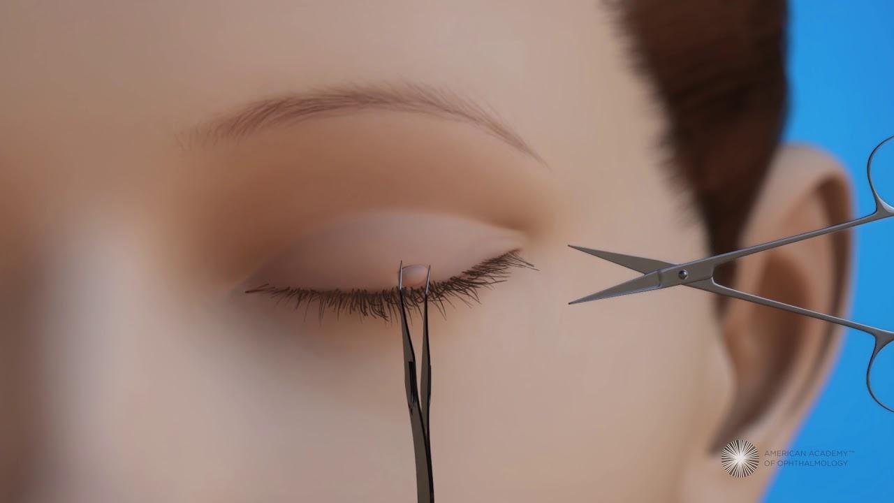papilloma on my eyelid cancer ovarian endometriosis