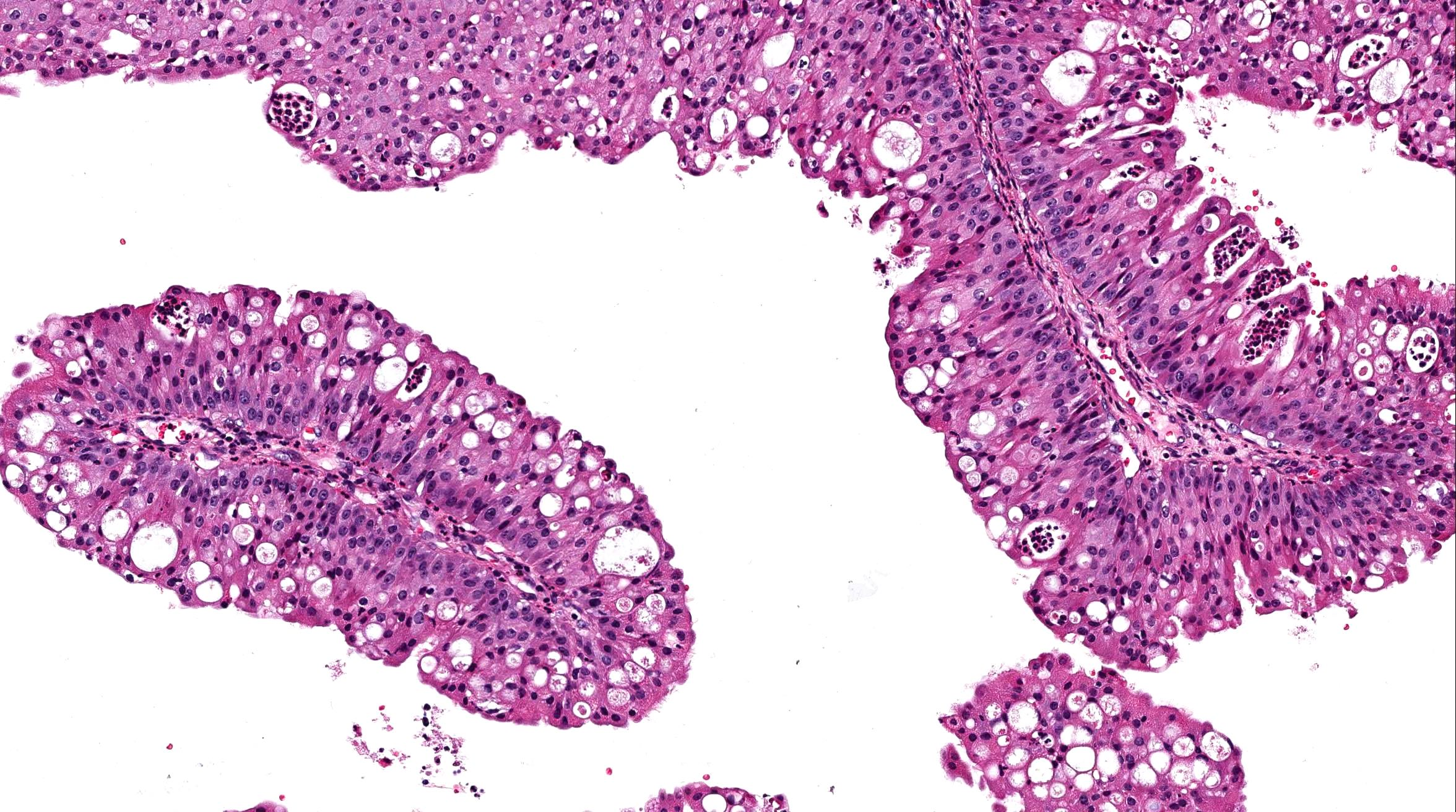 papilloma schneiderian nasal helminth infection pregnant