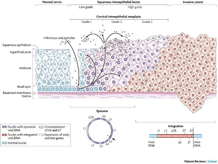 colorectal cancer young man papilloma laringeo contagio