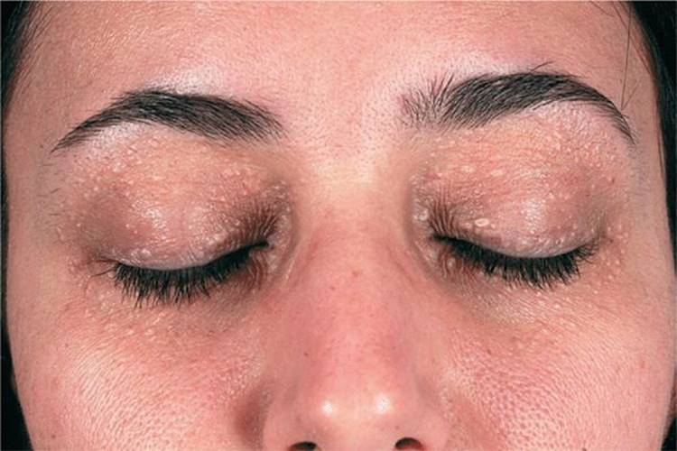 papilloma upper eyelid icd 10
