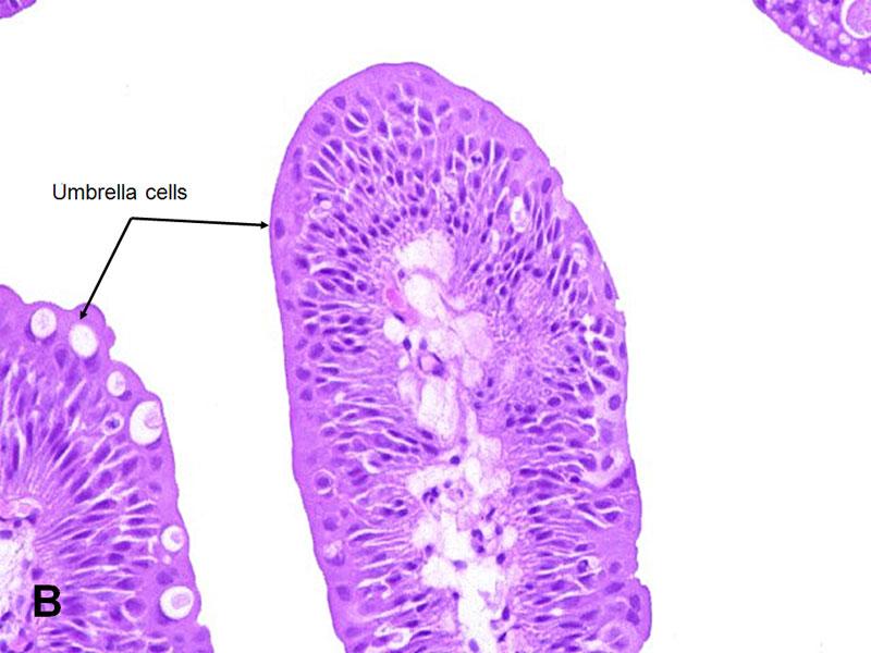 detoxifiant pt organism papillary lesion epididymis