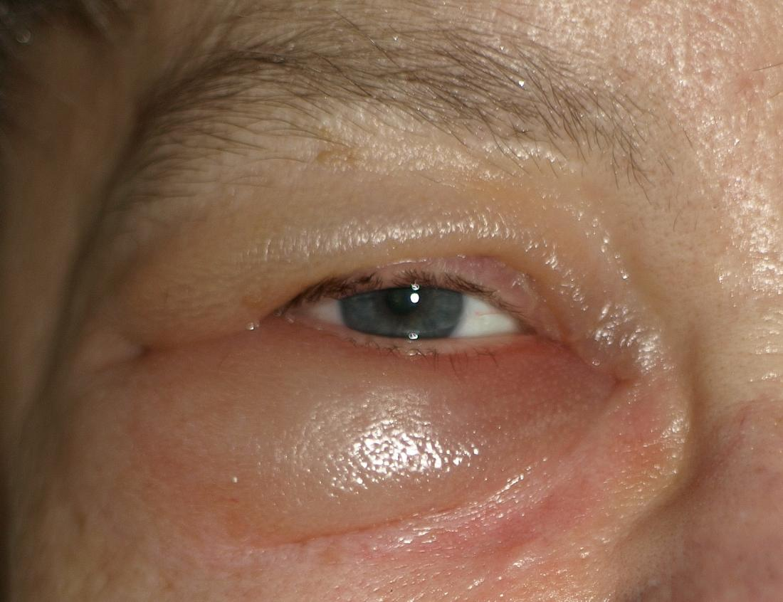 papilloma virale occhio parazitii rsr