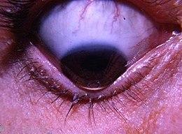 papilloma virus dellocchio