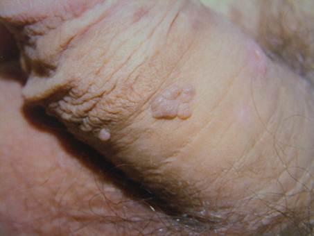 Infecție cu prostată