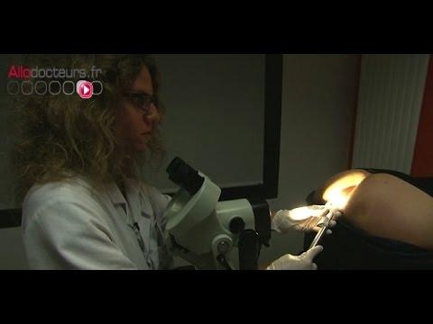 papillomavirus homme operation cancer colon foie metastase