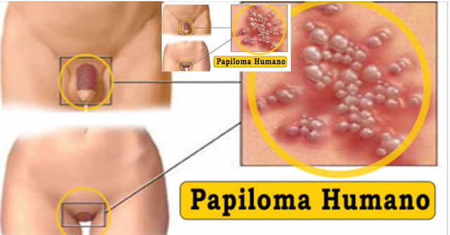 endometrial cancer hip pain penyakit hpv malaysia