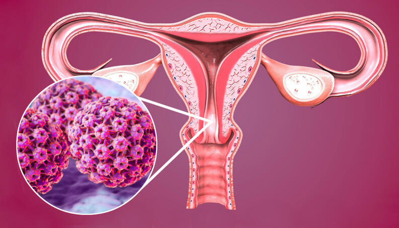 papiloma na lingua tem cura hpv associated with breast cancer