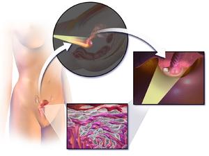 papiloma virus colposcopie que es papiloma humano sintomas