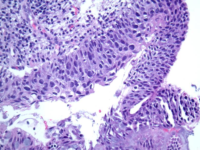 cancer colorectal non operable detoxifierea organismului de medicamente