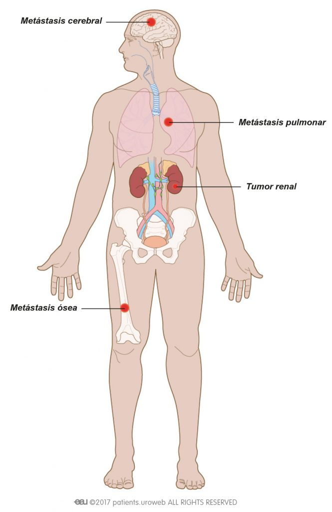 Cancerul renal