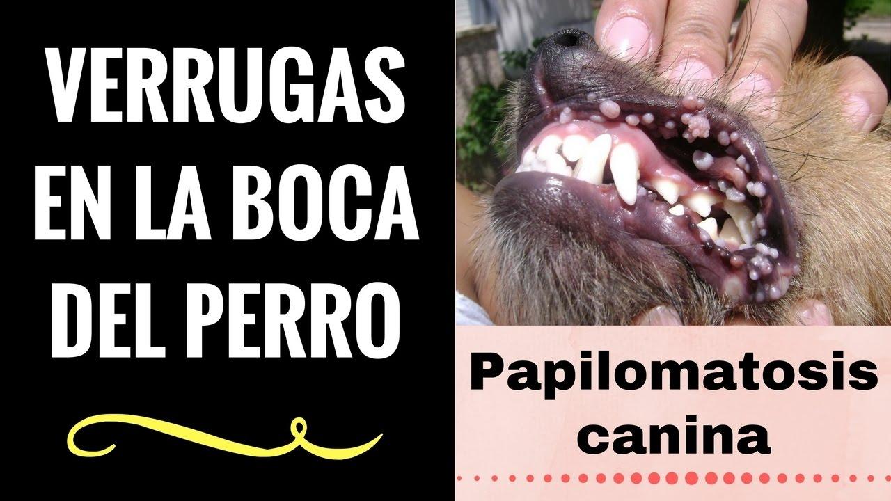 virus del papiloma humano en ingles wart treatment by doctor