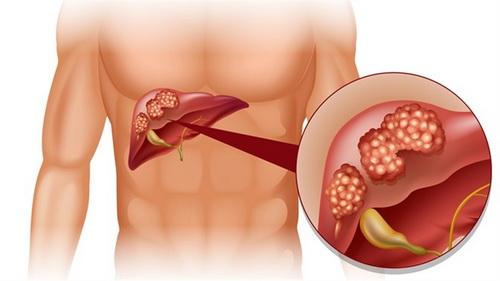 regim pentru cancerul la ficat neem anthelmintic
