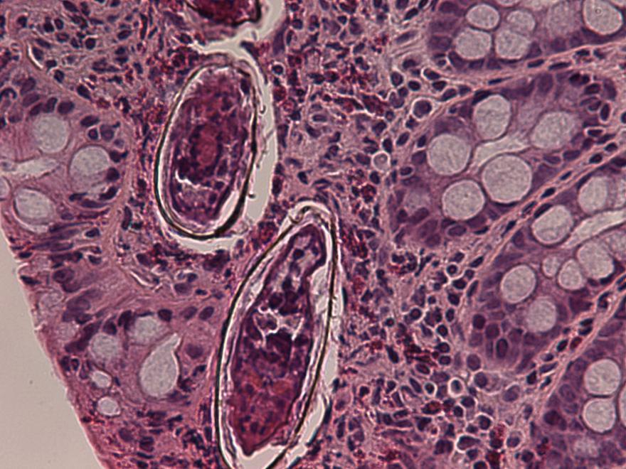 schistosomiasis pathology outlines intestinal