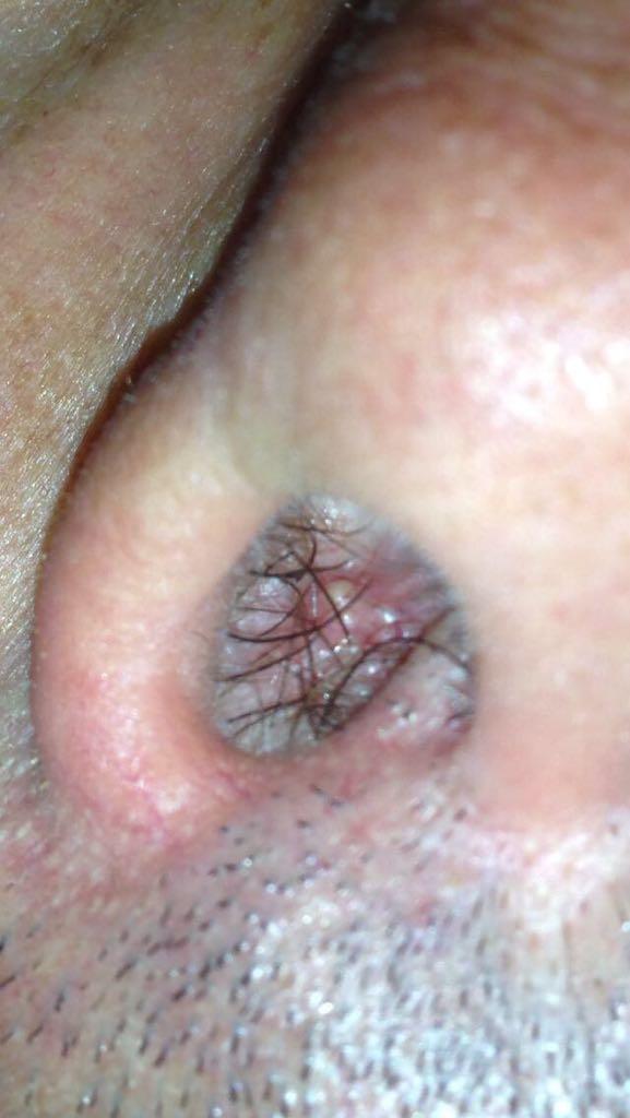 sintomi papilloma virus in gola