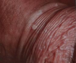 virus papiloma humano consecuencias sin tratamiento helmintox tablets