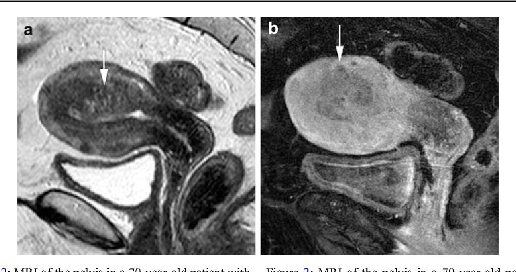 uterine cancer mri qual a relacao entre hpv e cancer de colo de utero