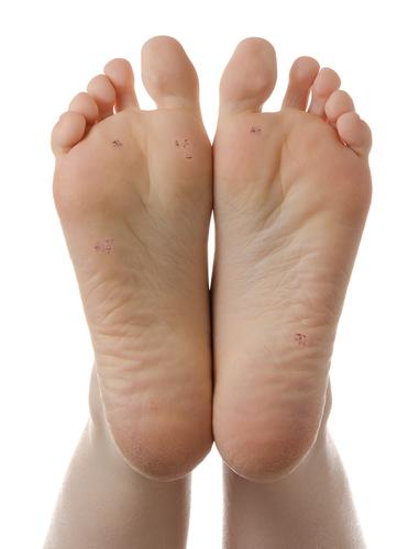 verruca foot child warts on hands turning black