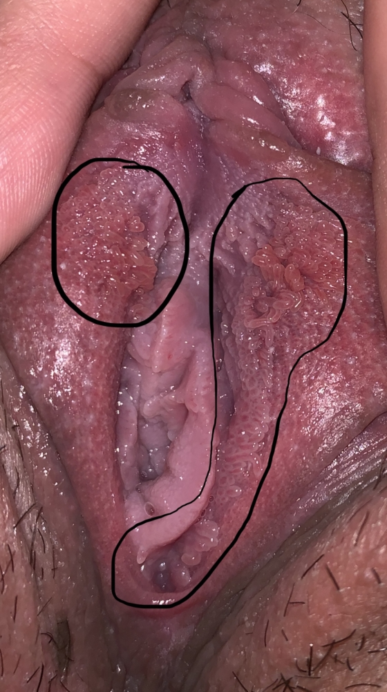 vestibular papillomatosis how to remove