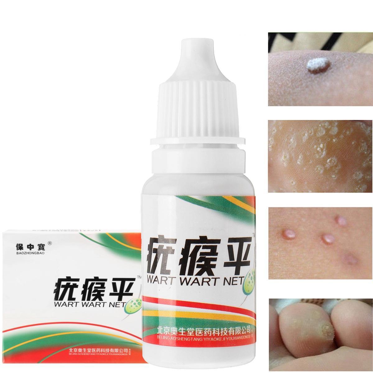 wart cream on skin tags