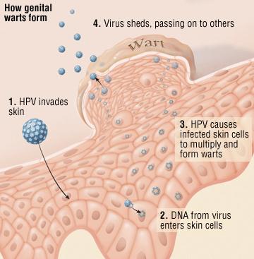wart virus how long