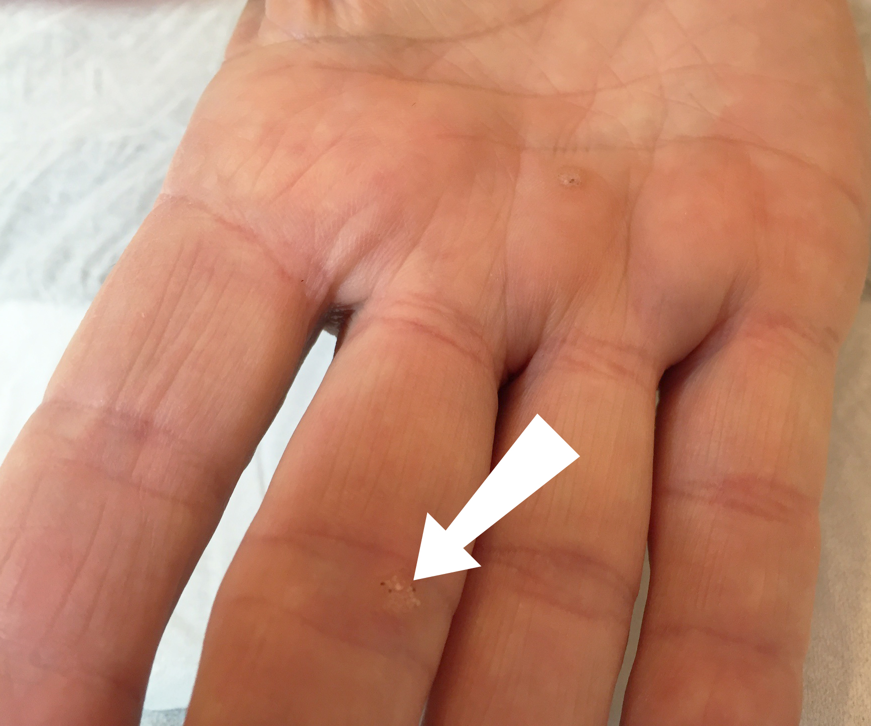 warts on hands during pregnancy papillomavirus infection cancer