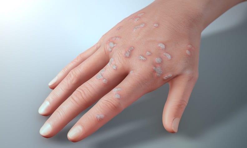warts on hands std plantar wart home remedy reddit