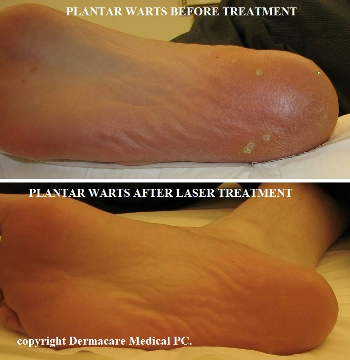 warts treatment with laser endocrine cancer test